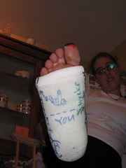 katies_cast_009_ (cb_777a) Tags: usa broken foot toes leg cast crutches ankle