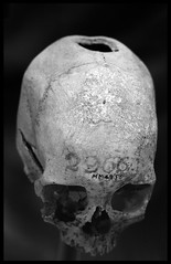 Ancient trepanation No. 2 (James Mundie) Tags: blackandwhite bw blancoynegro monochrome museum skull washingtondc monochromatic exhibit collection medical health anatomy medicine biancoenero pathology dissection dissected anatomical blancetnoir medicalmuseum mundie trepanation schwarzweis copyrightprotected prosection trepan nationalmuseumofhealthandmedicine jamesmundie armedforcesinstituteofpathology jamesgmundie profjasmundie morbidanatomy prosected jimmundie copyrightjamesgmundieallrightsreserved