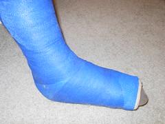 Foot cast (julesbirdie55) Tags: leg cast slc