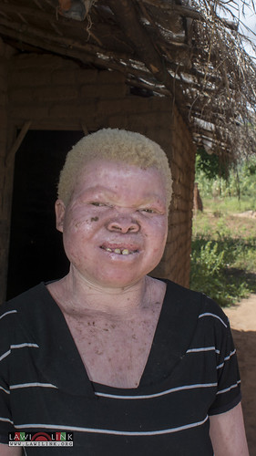 "Persons with Albinism • <a style=""font-size:0.8em;"" href=""http://www.flickr.com/photos/132148455@N06/26636120814/"" target=""_blank"">View on Flickr</a>"