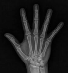 Radiograph: Brett's Hand (volkspider) Tags: blackandwhite hand brett xray bones thumb wrist radiography radiograph