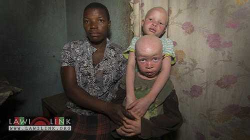 "Persons with Albinism • <a style=""font-size:0.8em;"" href=""http://www.flickr.com/photos/132148455@N06/26637190463/"" target=""_blank"">View on Flickr</a>"