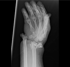 radiopaedia: Wrist pain after being hit by a car. Is there any injury? ANSWER: http://goo.gl/Vvglni via our Facebook page Just a subtle injury this one ;) (Radiology Signs) Tags: xray medicine wrist emergency fracture radiology trauma