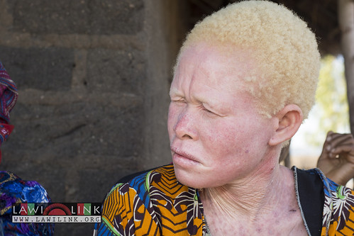 "Persons with Albinism • <a style=""font-size:0.8em;"" href=""http://www.flickr.com/photos/132148455@N06/27174526201/"" target=""_blank"">View on Flickr</a>"