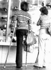 bw_29 1970s Hip Disarticulation girl (jackcast2015) Tags: handicapped disabled disabledwoman cripledwoman onelegwoman oneleggedwoman monopede amputee legamputee crutches