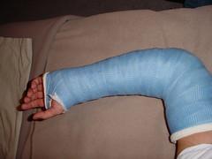 (fcaster8) Tags: fetish arm bondage cast fiberglass restriction immobilize immobilization abasiophilia