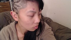recovering from shingles (ellesmelle) Tags: chicken shingles torture chickenpox pox sfgh zoster
