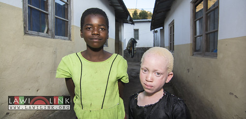 "Persons with Albinism • <a style=""font-size:0.8em;"" href=""http://www.flickr.com/photos/132148455@N06/27243915635/"" target=""_blank"">View on Flickr</a>"