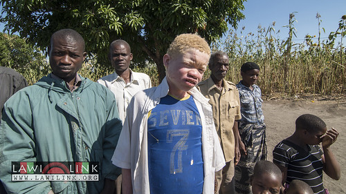 "Persons with Albinism • <a style=""font-size:0.8em;"" href=""http://www.flickr.com/photos/132148455@N06/27145648502/"" target=""_blank"">View on Flickr</a>"