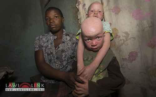 "Persons with Albinism • <a style=""font-size:0.8em;"" href=""http://www.flickr.com/photos/132148455@N06/27242789805/"" target=""_blank"">View on Flickr</a>"