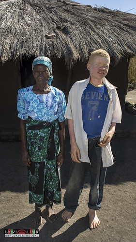 "Persons with Albinism • <a style=""font-size:0.8em;"" href=""http://www.flickr.com/photos/132148455@N06/27244219885/"" target=""_blank"">View on Flickr</a>"
