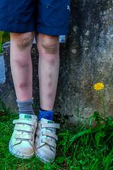 9 year old summer (b_tallman) Tags: kids dandelion bandages bandaids fujinon1855mm fujifilmxe2 9yearoldsummer