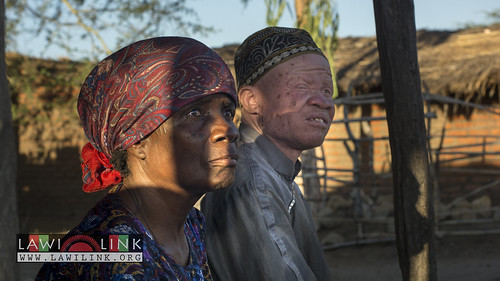 "Persons with Albinism • <a style=""font-size:0.8em;"" href=""http://www.flickr.com/photos/132148455@N06/26968124170/"" target=""_blank"">View on Flickr</a>"