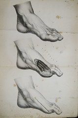 diagram of foot showing how to amputate the big toe