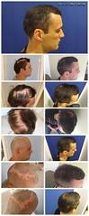 La greffe de cheveux pour les hommes et les femmes en Europe  http://fr.phaeyde.com/greffe-de-cheveux (phaeydeclinicfrance) Tags: hungary budapest clinic cheveux greffe phaeyde