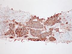 Adenocarcinoma; vascular invasion demonstrated by immunostains - Napsin A - Case 295 (Pulmonary Pathology) Tags: microscopic lung adenocarcinoma immunostain napsin