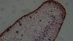 Under the Microscope: Lichen Section (Trav H) Tags: moss lichen algae slides microscope symbiotic photomicroscopy photosynthesis cyanobacteria plantlike focusstacking heliconfocus lichenspp lichensection