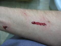 North Rim 027 (ceruleansnake) Tags: blood cat bite maul injury arm