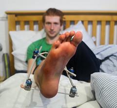 leg update #2 (JPC photo) Tags: portrait nikon bionic pins surgery portraiture metalwork scaffold recovery externalskeleton legbreak anklebreak breakingbones d5100 gamechanger