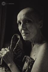 IMG_8858logo (zenimaging) Tags: cancer liver portrait seminude canoneosrebelsl1100d body figure health medicine