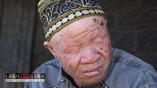 "Persons with Albinism • <a style=""font-size:0.8em;"" href=""http://www.flickr.com/photos/132148455@N06/26968287170/"" target=""_blank"">View on Flickr</a>"