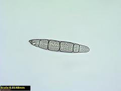 Spora di Drechslera 2 - 600x (IceDavid82) Tags: microscope spore microscopy microscopio microscopia microscopiaamatoriale drechslera