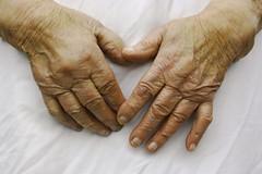 Aged_Skin (Uxa Vila) Tags: old hand skin body fingers age symmetric