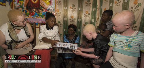 "Persons with Albinism • <a style=""font-size:0.8em;"" href=""http://www.flickr.com/photos/132148455@N06/26635904534/"" target=""_blank"">View on Flickr</a>"