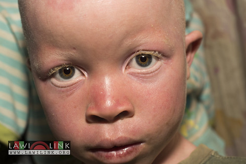 "Persons with Albinism • <a style=""font-size:0.8em;"" href=""http://www.flickr.com/photos/132148455@N06/26967475480/"" target=""_blank"">View on Flickr</a>"