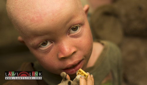 "Persons with Albinism • <a style=""font-size:0.8em;"" href=""http://www.flickr.com/photos/132148455@N06/27173500821/"" target=""_blank"">View on Flickr</a>"