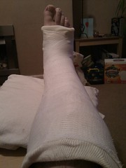 Broken Ankle (jrwi) Tags: march injury cast ankle brokenankle 2013