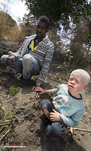 "Persons with Albinism • <a style=""font-size:0.8em;"" href=""http://www.flickr.com/photos/132148455@N06/26637424853/"" target=""_blank"">View on Flickr</a>"