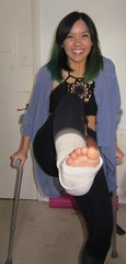 sandsadv_CpRxFHDW8AAbRYc (cb_777a) Tags: broken leg ankle foot cast crutches toes england
