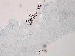 Adenocarcinoma; vascular invasion demonstrated by immunostains - TTF1- Case 295 (Pulmonary Pathology) Tags: microscopic lung adenocarcinoma immunostain ttf1 vascularinvasion