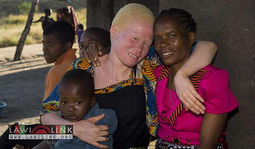 "Persons with Albinism • <a style=""font-size:0.8em;"" href=""http://www.flickr.com/photos/132148455@N06/27243690145/"" target=""_blank"">View on Flickr</a>"