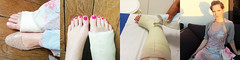 par_joined (cb_777a) Tags: broken foot toes leg cast ankle