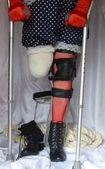 Legless brace 2 (JKiste2008) Tags: leg brace amputee