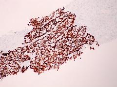 Adenocarcinoma; vascular invasion demonstrated by immunostains - TTF1 - Case 295 - (Pulmonary Pathology) Tags: microscopic lung adenocarcinoma immunostain ttf1