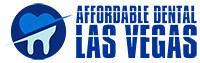 Dental Las Vegas Nevada Services in Your Area https://t.co/HhW94O5IB6 Dental Las Vegas services are important be https://t.co/IapnCwlCq0 (affordabledentallasvegas) Tags: dentist dental dentistry dentures cosmetic sedation implants teeth whitening