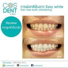 2014 - 00024 review  (Dental clinic in Bangkok) Tags:             cosdentbyslc dental clinic bangkok