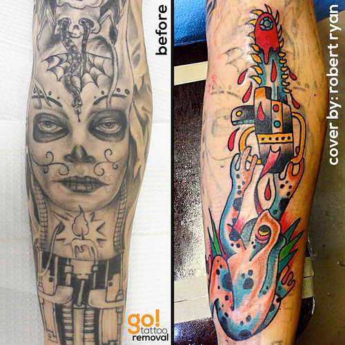 From Tattoo Removal to Tattoo Cover Up