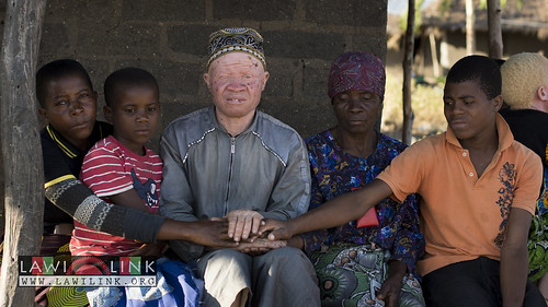 "Persons with Albinism • <a style=""font-size:0.8em;"" href=""http://www.flickr.com/photos/132148455@N06/27174422851/"" target=""_blank"">View on Flickr</a>"