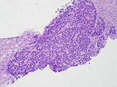Adenocarcinoma; vascular invasion demonstrated by immunostains - Case 295 (Pulmonary Pathology) Tags: microscopic lung adenocarcinoma