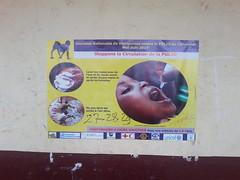 polio Babouantou 2