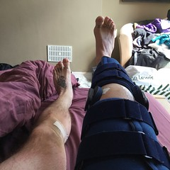 knee - 12 (Couch on Wheels) Tags: plc knee acl physio meniscus kneesurgery aclreconstruction anteriorcruciateligament aclrehab kneerehab posterolateralcorner plcreconstruction plcrehab