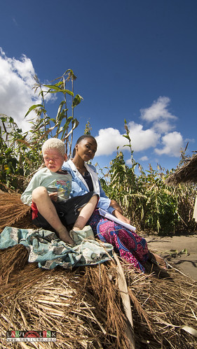 "Persons with Albinism • <a style=""font-size:0.8em;"" href=""http://www.flickr.com/photos/132148455@N06/27209126286/"" target=""_blank"">View on Flickr</a>"