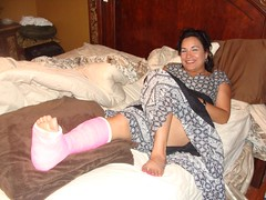 kerie_011 (cb_777a) Tags: broken foot toes leg cast ankle