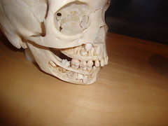 Where Teeth Come From (Hydra5) Tags: ontariosciencecentre skull human anatomy teeth