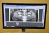 New Panoramic X-ray For Teeth (SOOC) (I Flickr 4 JOY) Tags: teeth roots gelato xray oral bones dentist squamish dentalclinic dentalcheckup sooc oralhealth dentalteam strawberrygelato panoramicxray