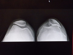 Just shoot me. (Just Back) Tags: bone joint skin muscle knee kneecap patella left right comparison legs arthritis messedup me xray medical care health tibia protein fat physics mess pose man